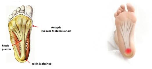 Fascitis plantar (Dolor en el talón) | Centro Integral del Pie