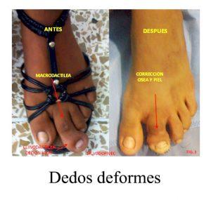 tratamiento-de-dedos-deformes-centro-integral-del-pie