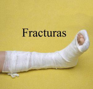 tratamiento-de-fracturas-centro-integral-del-pie