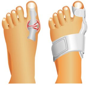 tratamiento-de-juanetes-centro-integral-del-pie