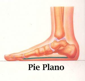 tratamiento-depie-plano-centro-integral-del-pie