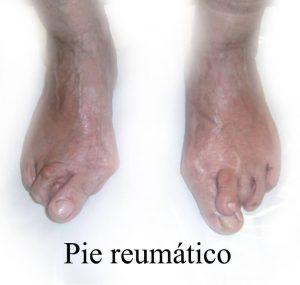tratamiento-depie-reumatico-centro-integral-del-pie